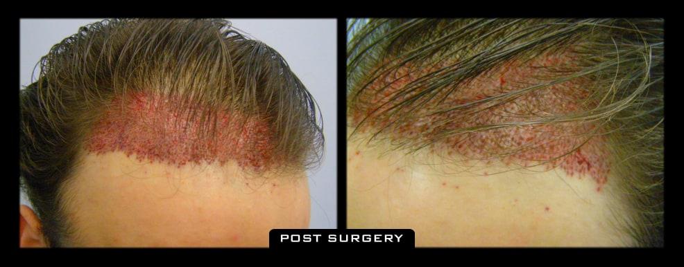 3500 FUT Surgery 1