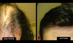 HairSystem_2