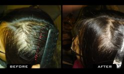 Female Hair Transplant 1200 Grafts