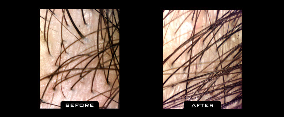 Close Up hair transplant