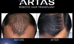 ARTAS HAIR TRANSPLANT VIDEO