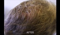 Vancouver Hair Transplants