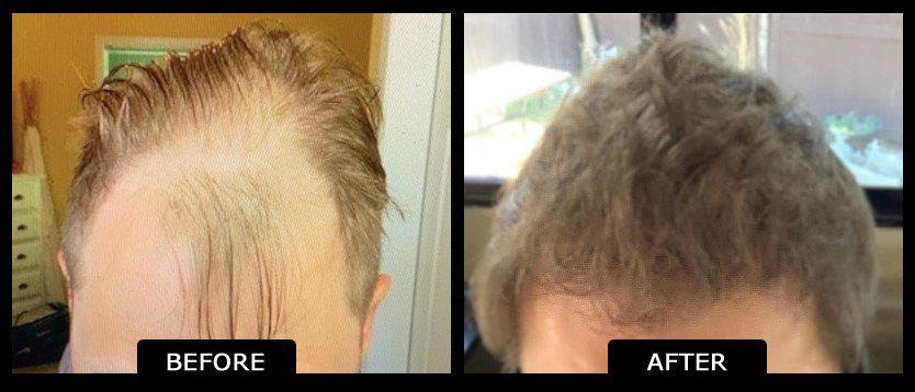before_after_hair_trans_1-1