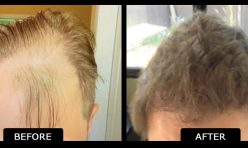 Before and After Hair Transplant Norwood 4