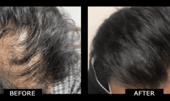 Norwood 4 HairTransplant 3000 Grafts